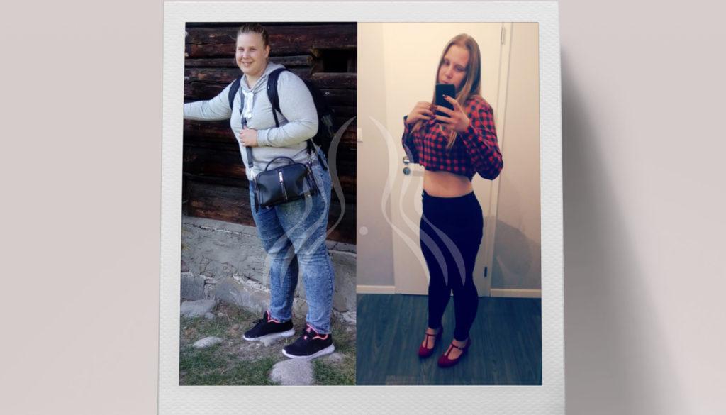 Ema Turčan: 35 kg manje za 7 mjeseci